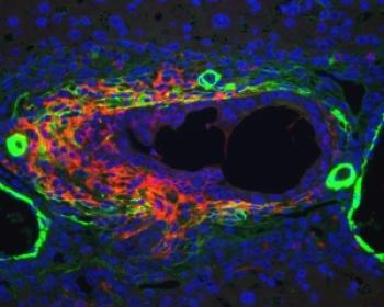 Image shows liver progenitor cells (red) in their niche (green). Image credit Dr Luke Boulter