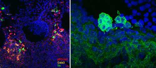 Image left: expression of three microenvironmental regulators of HSC emergence around the E11.5 mouse embryonic dorsal aorta. Image right: clusters of emerging ckit  haematopoietic cells in the dorsal aorta of an E11.5 mouse embryo.
