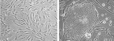 Human fibroblasts (left) reprogrammed into iPSCs (right).