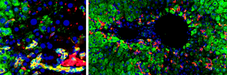 Transplanted hepatic progenitor cells can self-renew (yellow, left image) and differentiate into hepatocytes (green) to repair the damaged liver. Image credit: Dr Wei-Yu Lu.